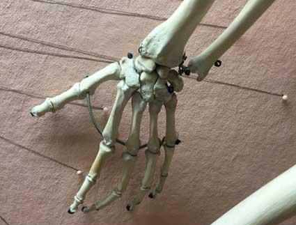 bones13.21.58